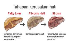 gangguan fungsi hati